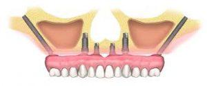 Tecniche innovative per l'applicazione di impianti dentali