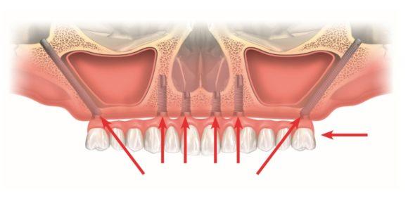 Lo specialista di implantologia dentale riconousciuto tra i migliori